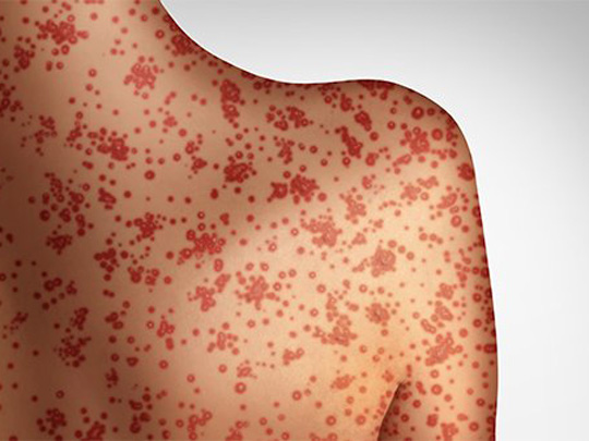 Photo of someone with dots on their back that look like measles.